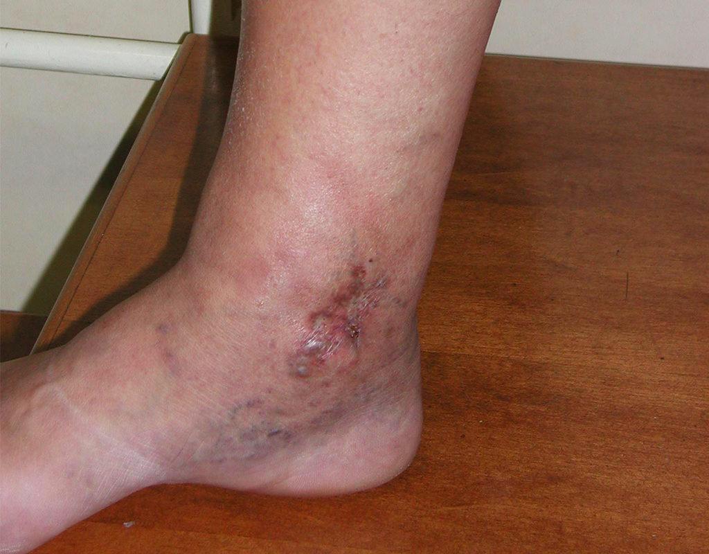 Piccola Ulcera
